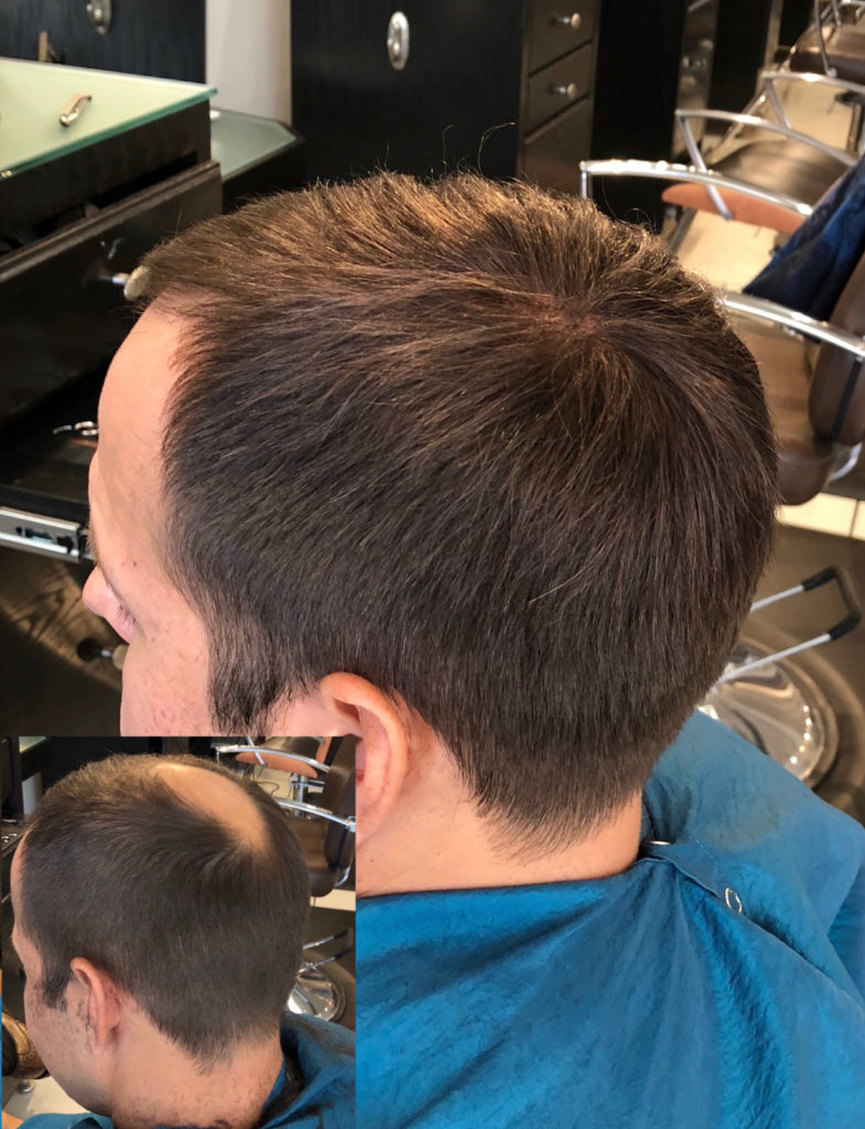 Hair Replacement For Men | Non-Surgical Hair Loss System