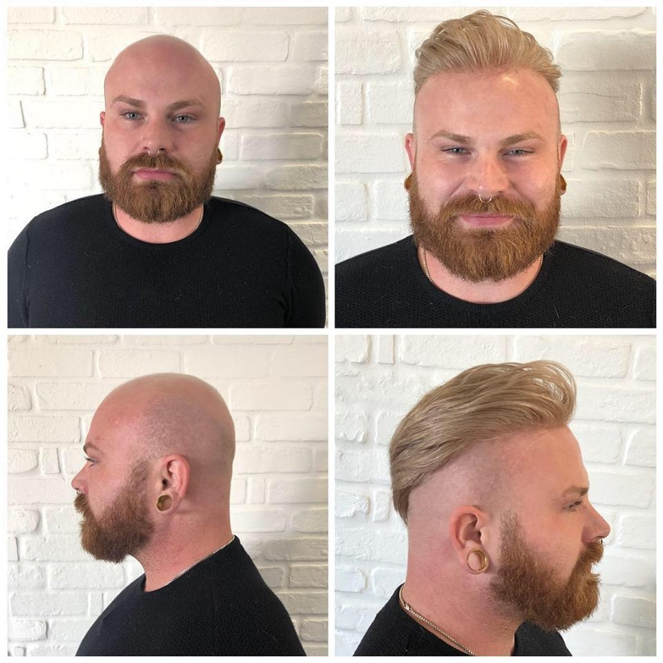 hair replacement for men   non-surgical hair loss system